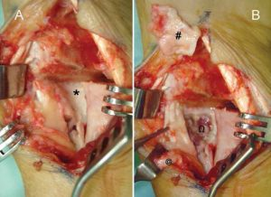 Let Us know Removal of Bone Plate