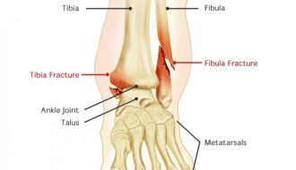 Dislocated Proximal Fibula